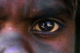 32,000 Indigenous Australians could be blind by 2025